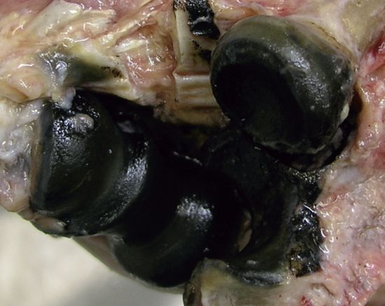 alkaptonuria the black urine disease Download presentation powerpoint slideshow about 'alkaptonuria (black urine disease)' - shanna an image/link below is provided (as is) to download presentation.